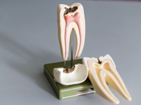 the difference between a cavity and needing a root canal